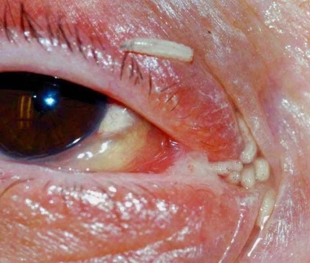Ratusan Ulat Dalam Hidung dan Mata Wanita
