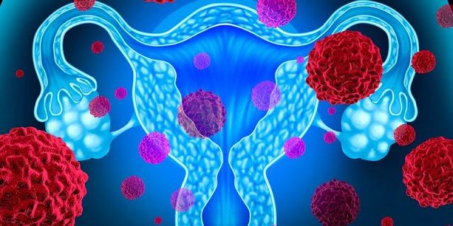 Gejala Tumor Ovarium Dan Penyebabnya