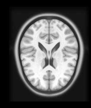 Medical Imaging & Computer Vision: Medical Image Analysis IPython