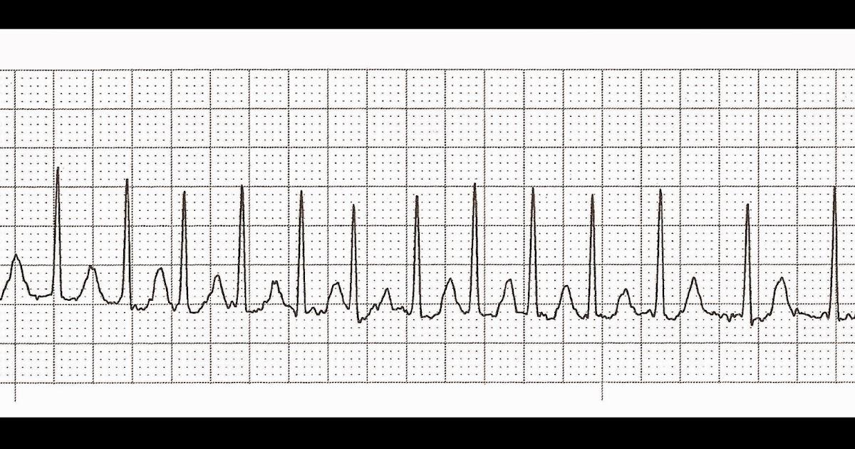 Float Nurse: Practice EKG Strips 368