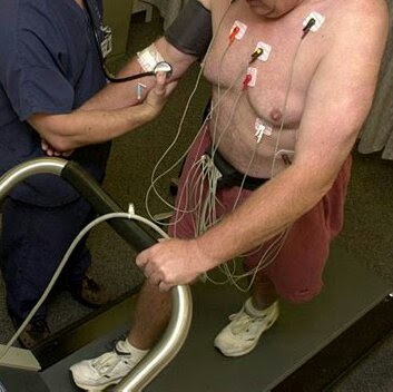 Man walking on a treadmill with electrodes and leads connecting him to heart monitoring devices during cardiac stress test.