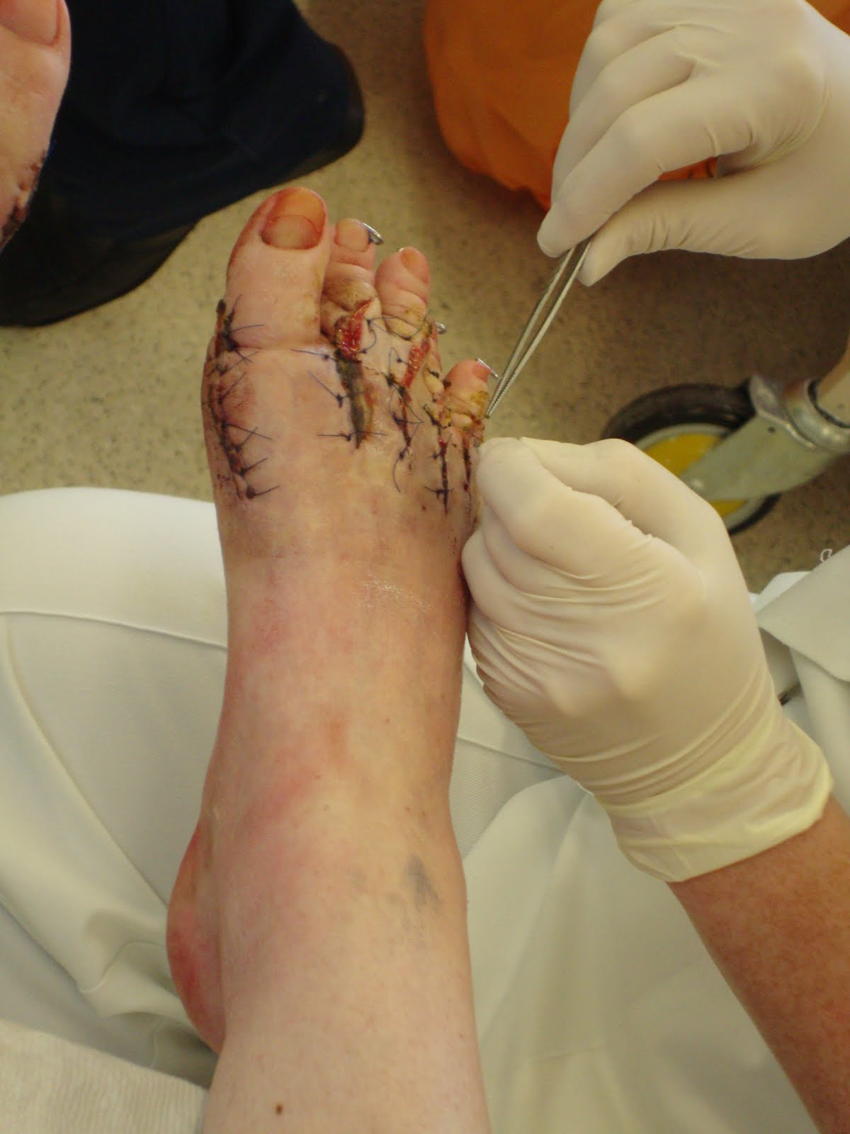 disgusting cuts - photo #19