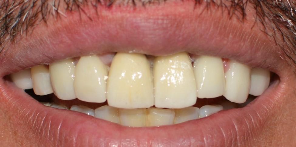 Odontología Especializada: Creación de Papilas en Implantes Estética ...