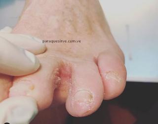 Como curar el pie de atleta.