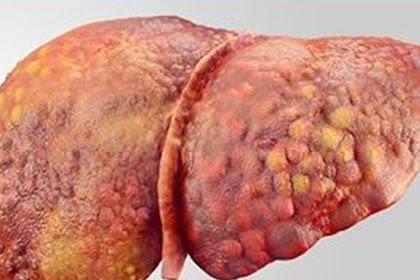 Kanker Hati: Inilah Penyebab, Tanda Gejala dan Cara Pengobatannya