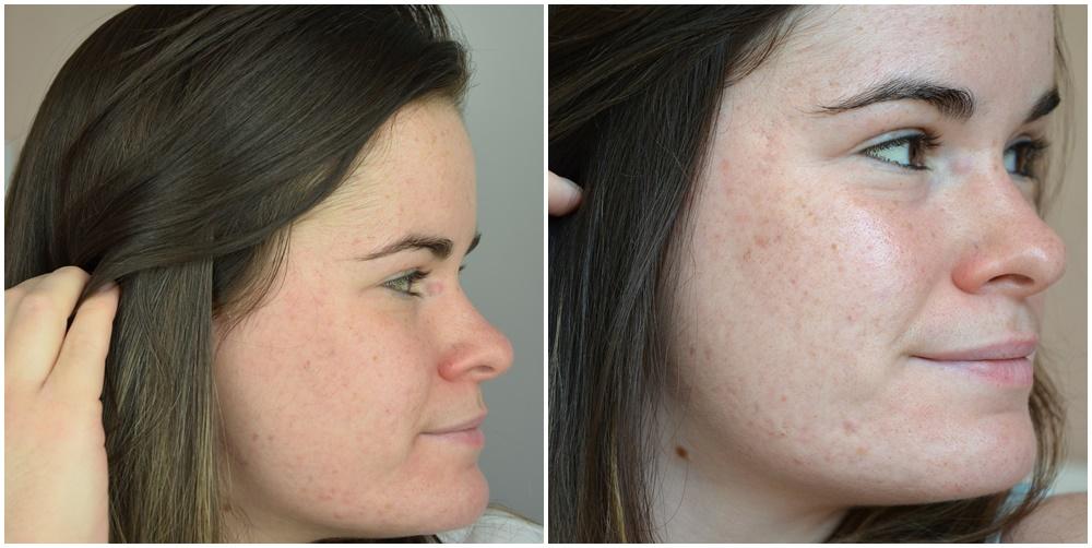 comparaison joue droite quatrièeme et cinquième mois de traitement contre l'acné