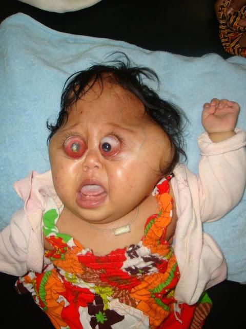 gambar manusia aneh bayi seperti wajah katak