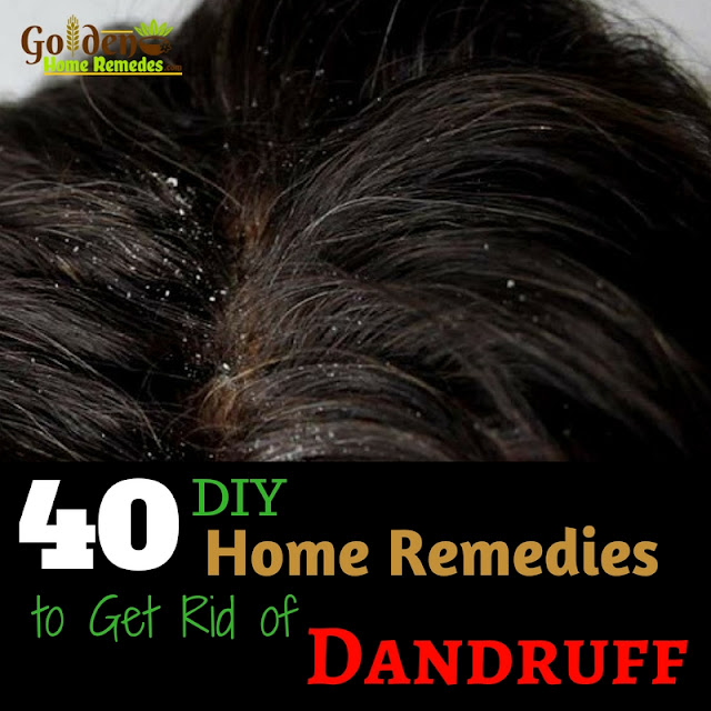 How To Get Rid Of Dandruff, How To Remove Dandruff, Home Remedies For Dandruff, Dandruff Treatment, Dandruff Remedies, Treatment For Dandruff, Dandruff Home Remedy, Dandruff Causes, Causes Of Dandruff,