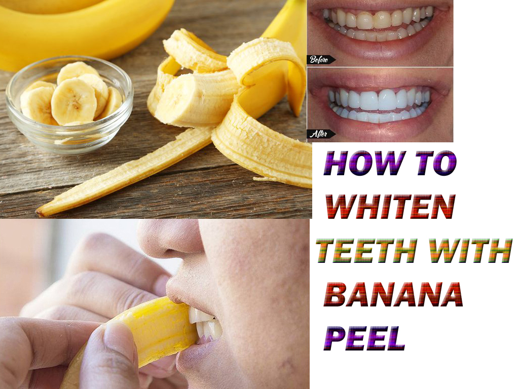 How To Get Whiter Teeth At Home Diy Architecture Interior Design