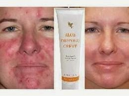 forever Aloe Propolis creme corrects all form of skin  infections including acne, eczema