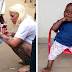 2-Year-Old 'Witch Child' Who Was Left To Die Makes Stunning Recovery