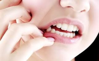 Cara Meredakan Sakit Gigi Dengan Bahan Bahan Herbal
