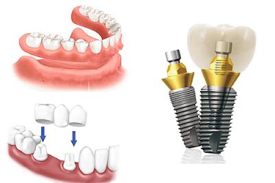 những lưu ý trước khi trồng răng implant -4