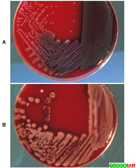 A, Pseudomonas aeruginosa illustrating the metallic sheen and green pigmentation of colonies on blood agar plate (BAP). B, Not all strains of the same organism have the same colonial appearance. This is a mucoid strain of P. aeruginosa on BAP.