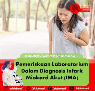 Infark Miokard Akut,infark miokard akut pdf,infark miokard akut ekg,infark miokard akut ppt,infark miokard akut icd 10,infark miokard akut stemi pdf,infark miokard akut ventrikel kanan,infark miokard akut jurnal,infark miokard akut inferior,infark miokard akut subendocardial,infark miokard akut dengan elevasi st,infark miokard akut menurut who,infark miokard akut askep,infark miokard akut scribd,infark miokard akut makalah,infark miokard akut non stemi,infark miokard akut gejala,infark miokard akut anteroseptal,infark miokard akut lp,infark miokardium akut,jurnal infark miokard akut pdf,infark miokard akut adalah,infark miokard akut adalah pdf,komplikasi infark miokard akut adalah,pengobatan infark miokard akut adalah,pengertian infark miokard akut adalah,askep infark miokard akut pdf,askep infark miokard akut nanda nic noc,algoritma infark miokard akut,penyebab utama terjadi infark miokard akut adalah,anatomi infark miokard akut,askep infark miokard akut ppt,artikel infark miokard akut,askep kegawatdaruratan infark miokard akut,contoh askep infark miokard akut,asuhan keperawatan infark miokard akut,anatomi fisiologi infark miokard akut,akut miokard infark (ami),analisa data infark miokard akut