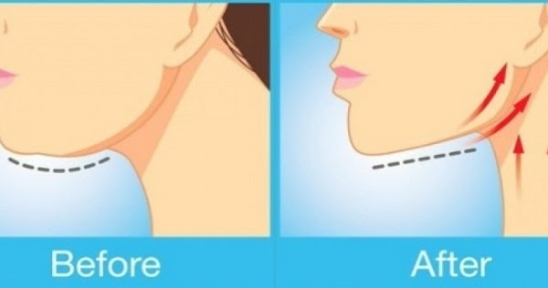 how to lose weight in neck and chin