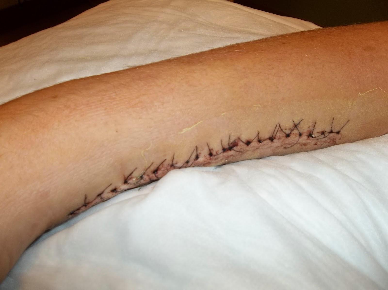 Cut Wrist Stitches