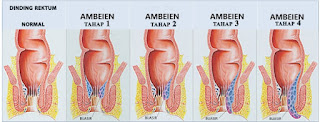 Obat Wasir Tradisional Menyembuhkan  Dalam 3 Hari Tanpa Operasi