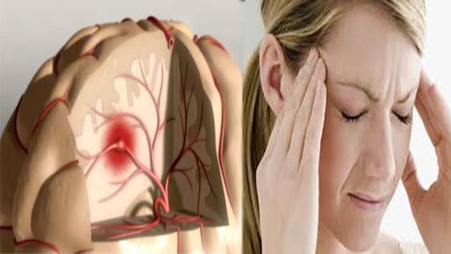 Estos son los síntomas que podrían estar avisándote que sufres un ACV.