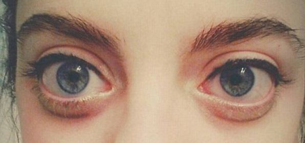 Cara untuk Menyingkirkan Mata Sembap Setelah Menangis
