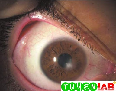 Small corneal ulcer in the visual axis.