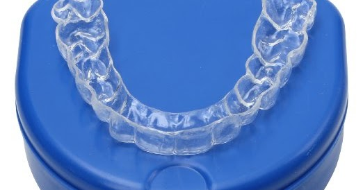 Essix Retainers Review | Sporting Smiles