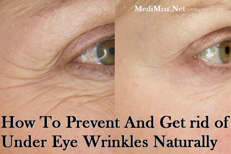 Natural Remedies For Eye Wrinkles