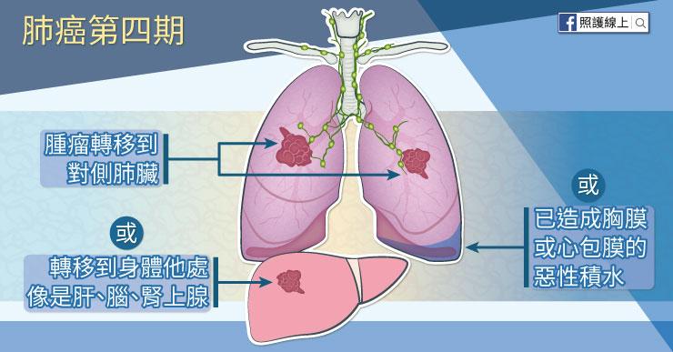 肺癌第四期
