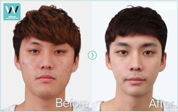 Plastic Surgery in Korea. We provide high quality medical ...