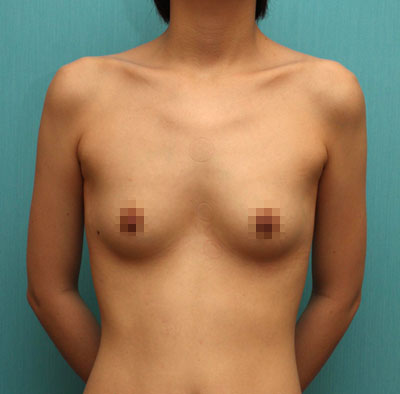 짱이뻐! - Breast Surgery, The Final Result Of 5 Years Consideration