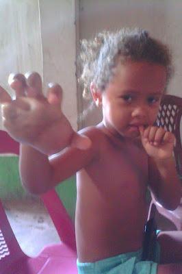 Solidariedade - Criança de Brejo/MA precisa de ajuda para realizar tratamentos em São Paulo