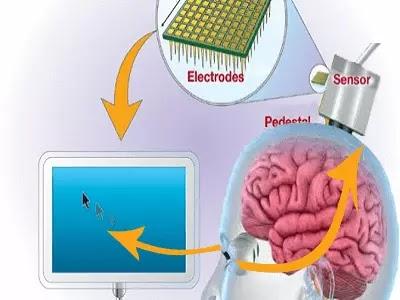 تكنولوجيا جديدة تسمح للاشخاص المشلولين