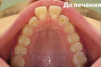 Разъехавшиеся зубы окклюзионный снимок