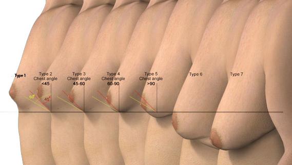 Image result for स्तनों में ढीलापन