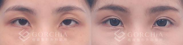 何格彰雙眼皮案例-12.%25E8%25A8%2582%25E6%259B%25B8%25E9%2587%259D%25E9%259B%2599%25E7%259C%25BC%25E7%259A%25AE-%25E5%25A7%259C%25E8%2591%25A6