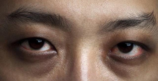 Ternyata, ini sebabnya muncul lingkaran gelap di bawah mata