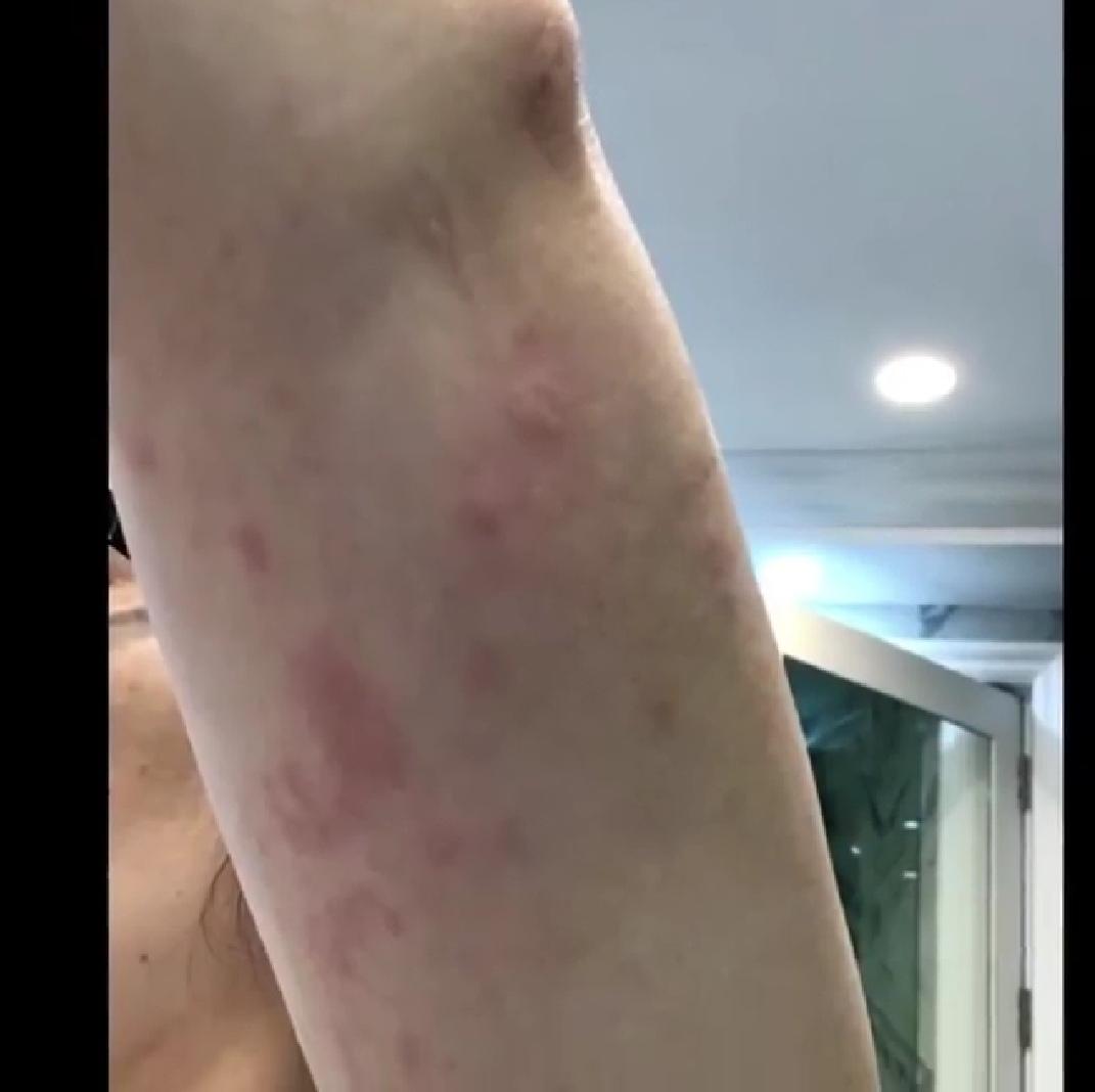 Kris Aquino suffers from Chronic Spontaneous Urticaria