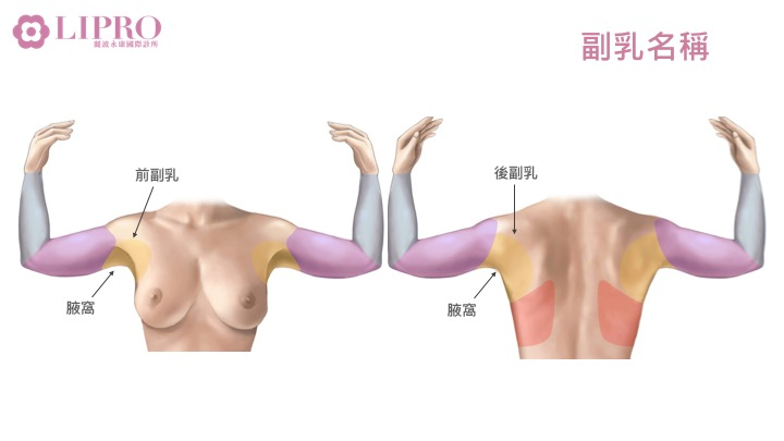 副乳手術部位名稱