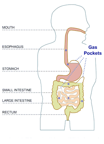 What Food Is Good For Gassy Stomach