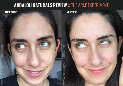 Andalou Naturals Toner Before & After :: The Acne Experiment