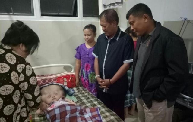 Besok, Anak Penderita Hidrosefalus di Soppeng Dirujuk ke Makassar
