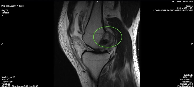 MRI image of knee with a curled piece of soft tissue in front of the bone