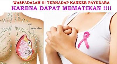http://mustahabbah.blogspot.com/2017/03/penyakit-yg-sangat-berbahaya-bagi-wanita.html