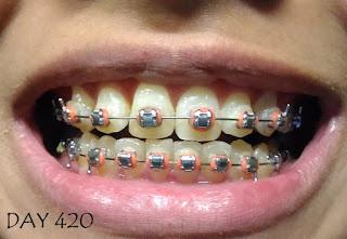 braces, braces malaysia, klinik swasta