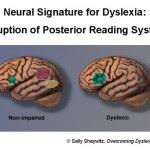 Otak Disleksia