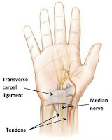 carpal tunnel symptoms,treatment of carpal tunnel syndrome