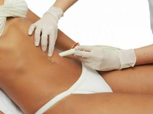 Carboxiterapia: Procedimiento cosmético no quirúrgico