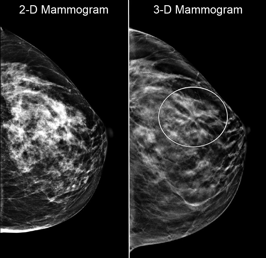 Medical Media Images Blog: 3-D Mammograms: What Does The