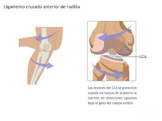 lesion de ligamentos cruzados