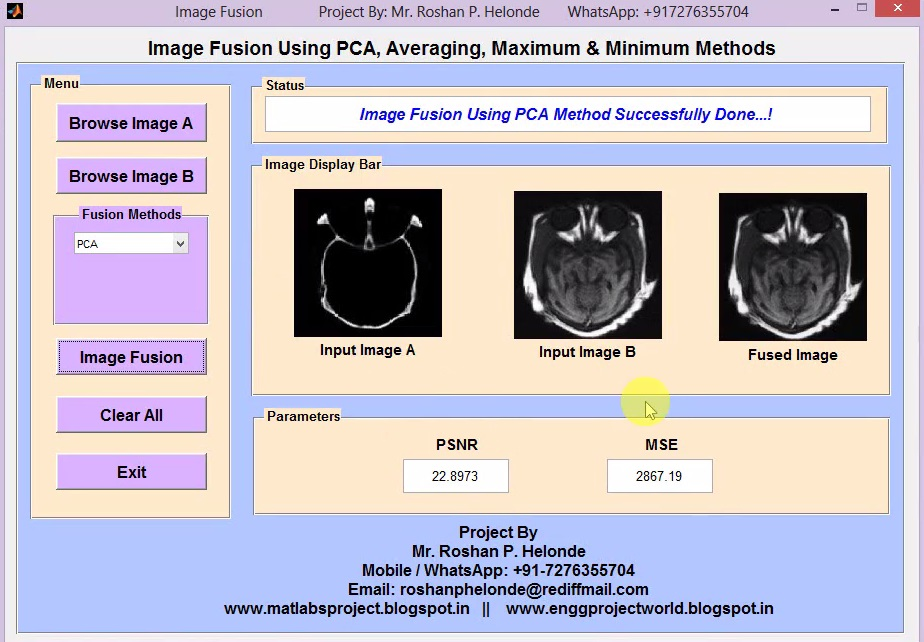 Matlab Code for Image Fusion Using PCA on MRI and CT Image Full